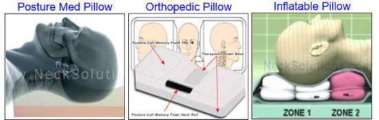best pillow for cervical radiculopathy
