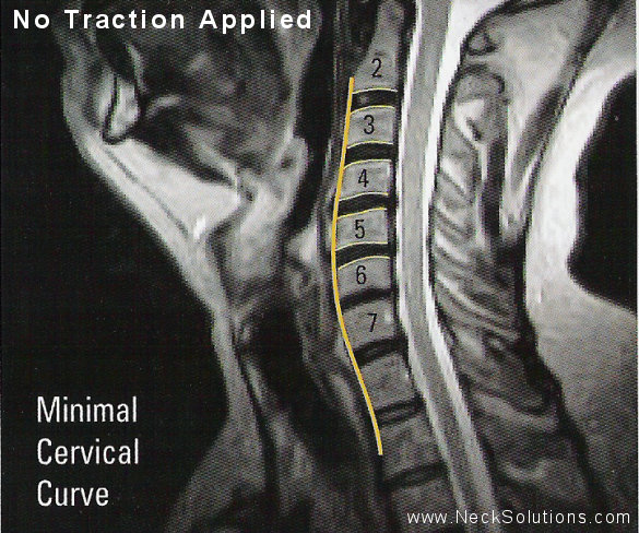 Home Neck Traction No Device