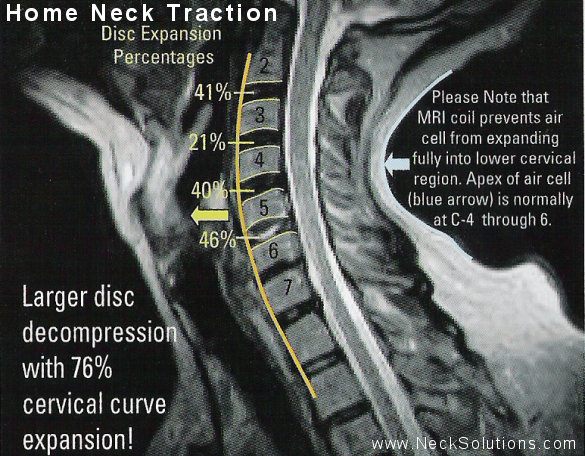 Home Neck Traction Device