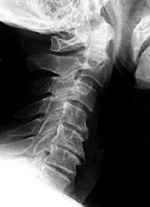 X-Ray View Normal Neck