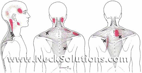 Trapezius Myalgia Trapezius Muscle Exercises