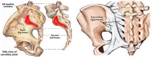 right sciatic pain
