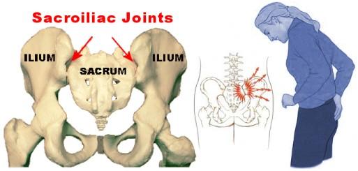 درد ناحیه ساکروم - فیزیوتراپیست وحید صادقی هشجین