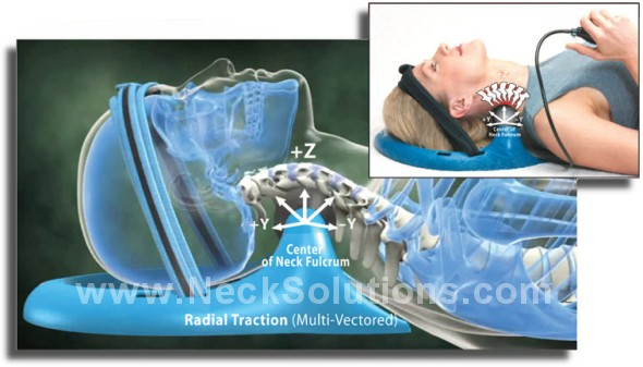 disc hydrating cervical traction