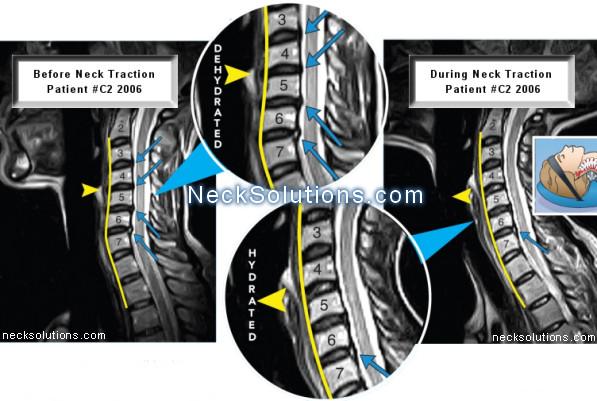 neck traction study