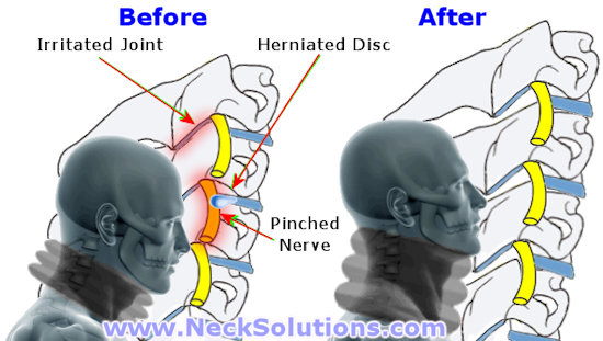 benefits of air neck traction