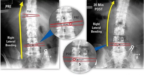 before and after x-ray views