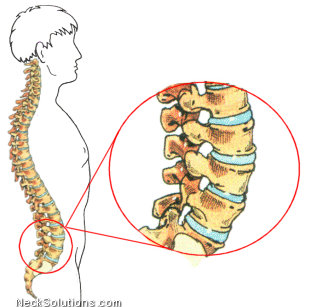 Facet Joint Syndrome - Facet Syndrome