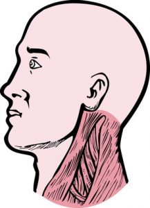 strain neck muscle