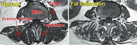 fatty muscle infiltration