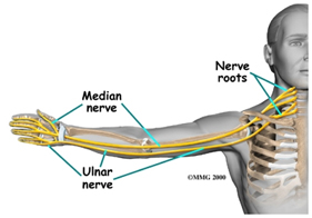 Pinched nerve in neck symptoms treatments pinched nerve in neck publicscrutiny Images