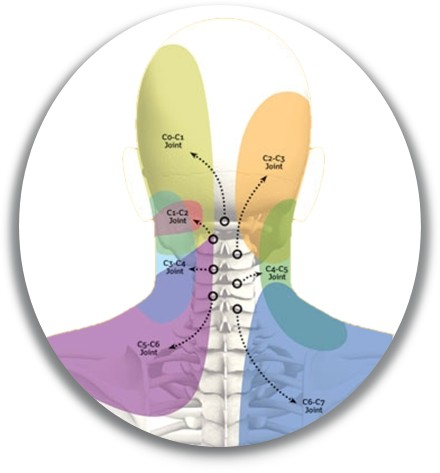 joint neck pain patterns