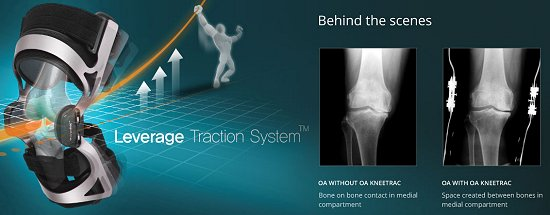 traction knee brace