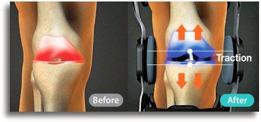 traction brace for knee arthritis
