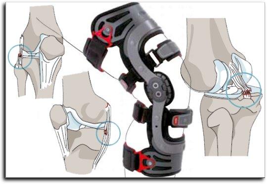 braces for knee ligament damage