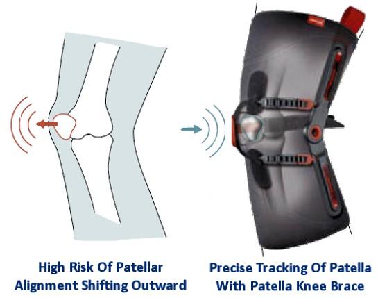Patella Knee Brace Patellofemoral Syndrome