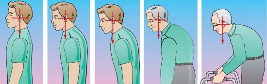 home neck traction for posture