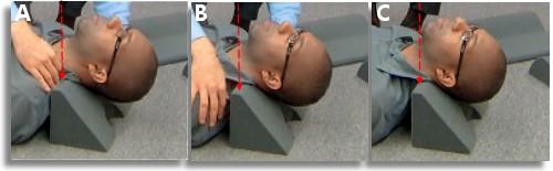 Neck Curve Restoration The Wedge Correction Method