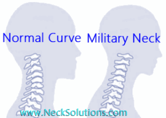 normal and military neck
