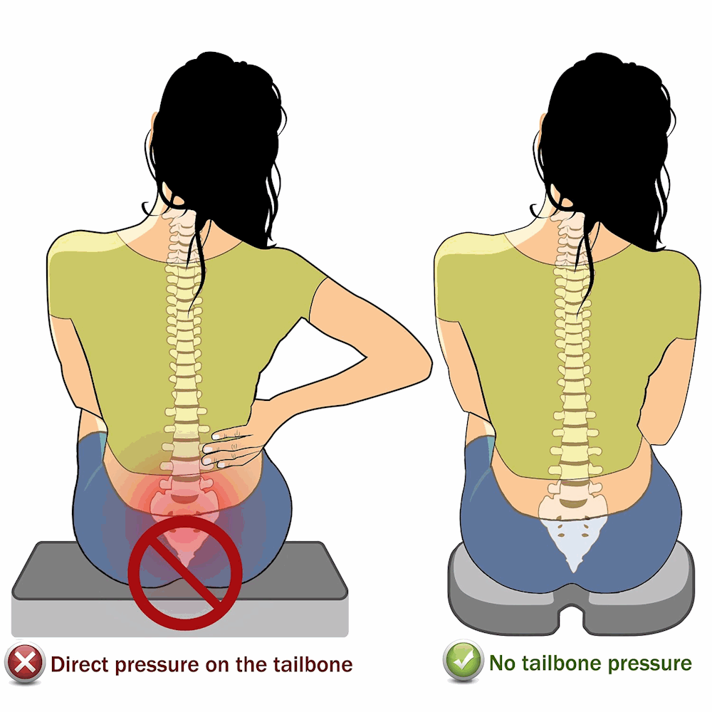 Tailbone Pain Causes Amp Treatment For Coccyx