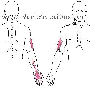 breathing exercises - scalenes