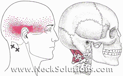 headache neck pain