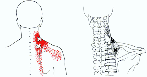 neck strain - levator scapula