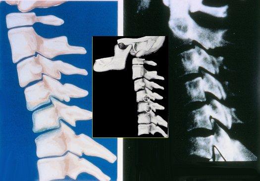 Neck Arthritis , Progressive Degeneration \u0026 How To Stop It