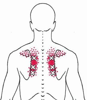 rhomboid muscle
