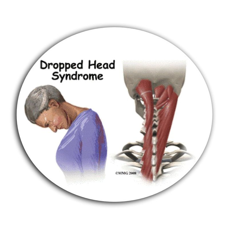 drop head syndrome