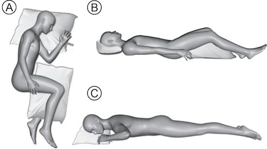recommended sleeping positions for neck and back pain