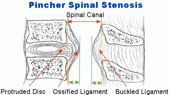 pincher spinal stenosis