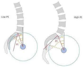 loss of lumbar curve