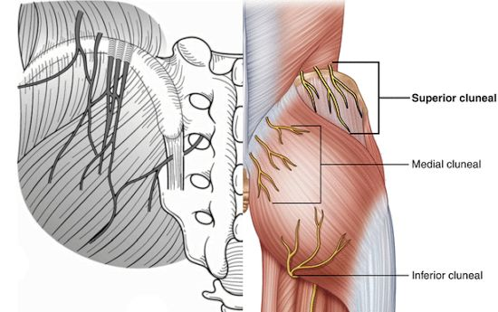 cluneal nerve entrapment can mimic sacroiliac joint pain