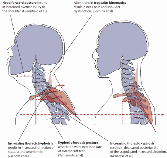 forward head posture and shoulder problems
