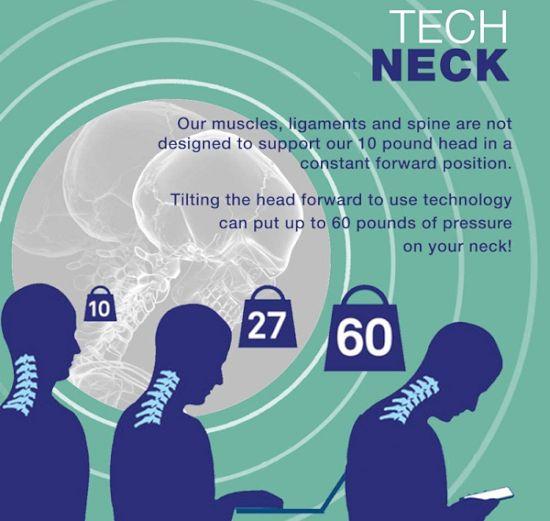 tech neck symptoms