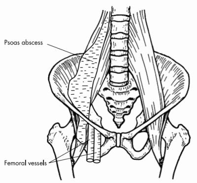 iliopsoas abscess